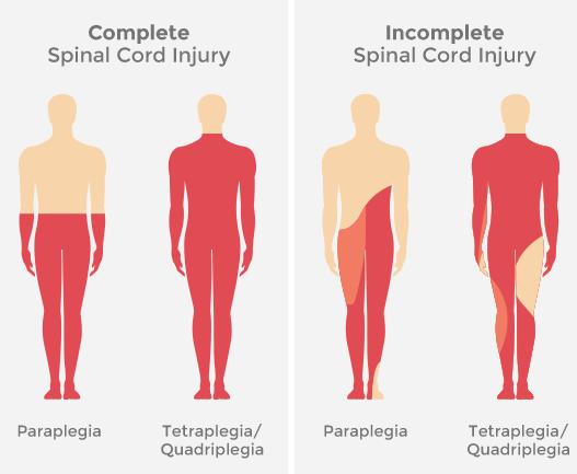 Nowa metoda leczenia paraliżu przywraca zdolność chodzenia w rekordowym czasie