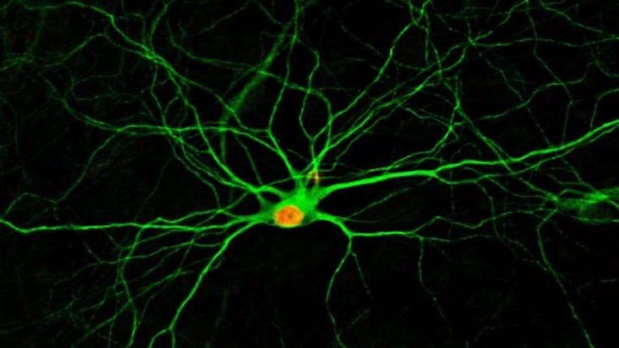komórki, neurony, mózg, uszkodzenie mózgu, naprawa mózgu, leczenie mózgu
