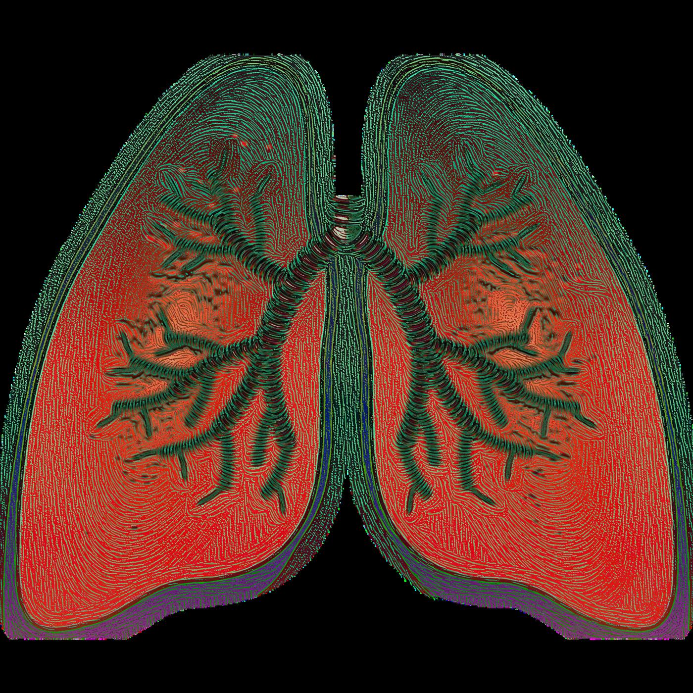 Cukier, choroby płuc, makrofagi, makrofagi Cukier, płuca Cukier, choroby płuc Cukier
