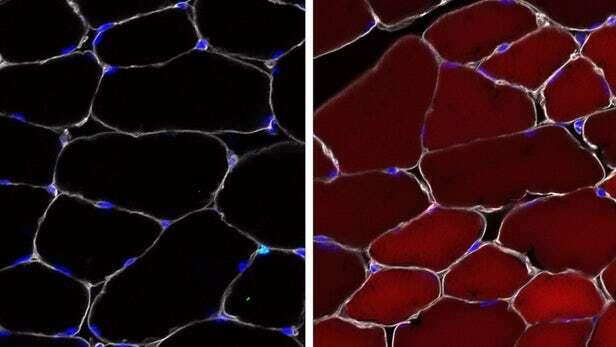 Komórki macierzyste, edytowanie Komórki macierzyste, crispr Komórki macierzyste, ciało Komórki macierzyste, organizm Komórki macierzyste