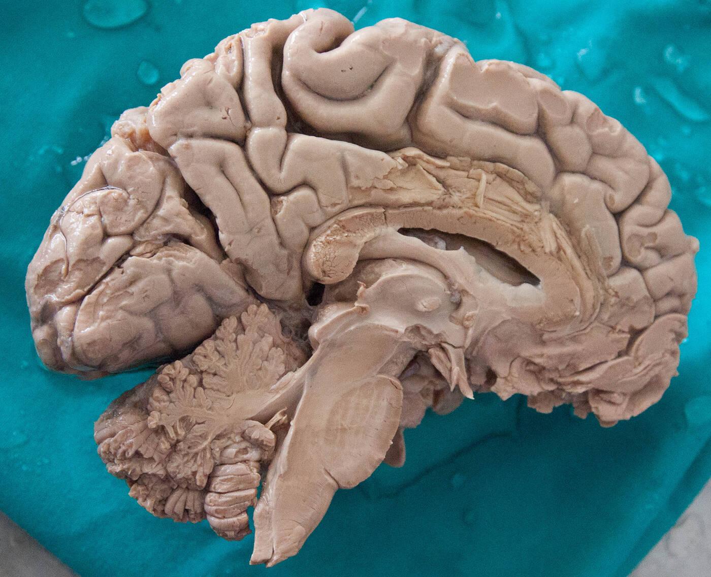 Ile kalorii spala mózg w czasie myślenia?