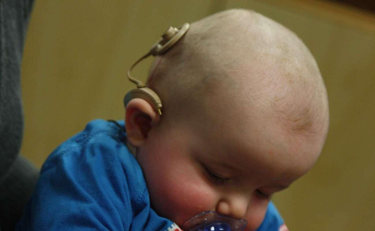 Nowe normy PEM zepsują implanty słuchowe? To kolejna manipulacja i fake news