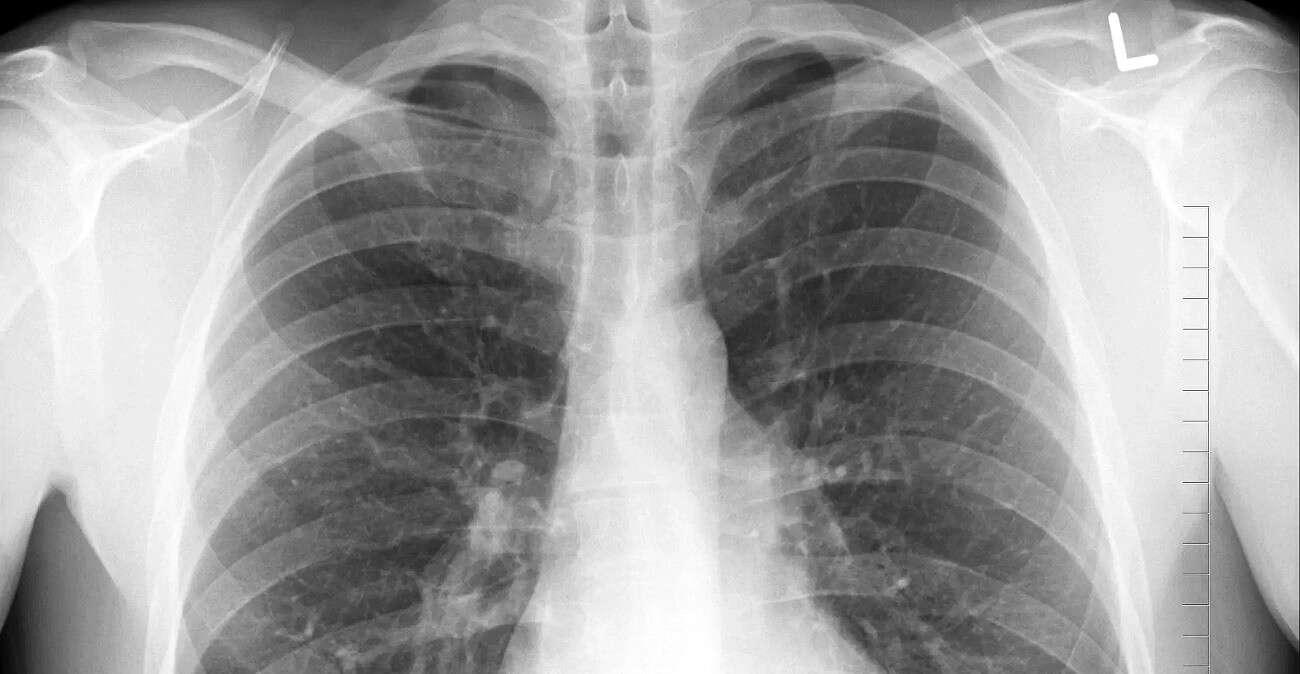 COVID-19 gorszy niż palenie. Poznaliśmy wyniki badania dot. płuc
