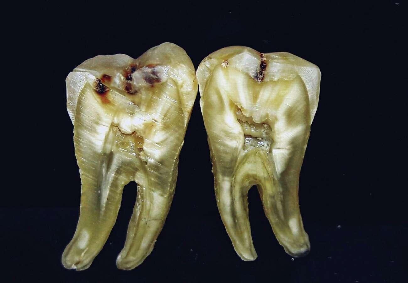 Na podstawie analizy zębów można dowiedzieć się naprawdę wiele