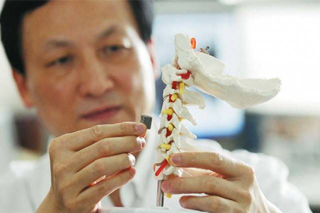 Sztuczny implant kręgu stworzony za pomocą drukarki 3D