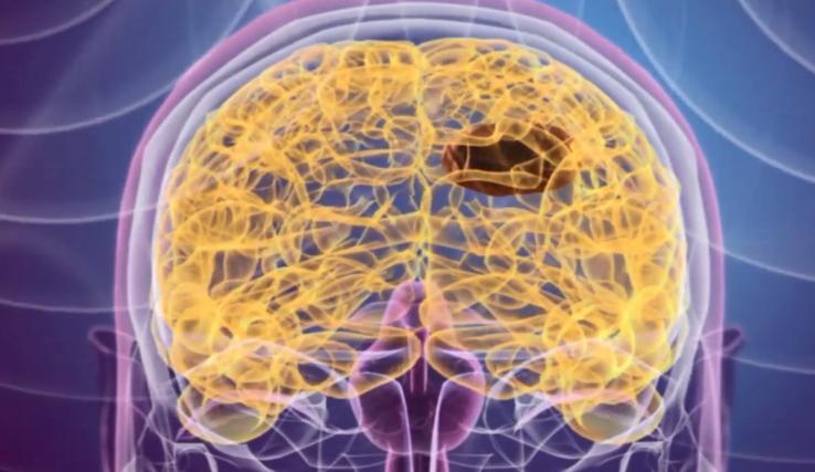 Nanomedyczna firma dostała 15 milionów dolarów na walkę z rakiem