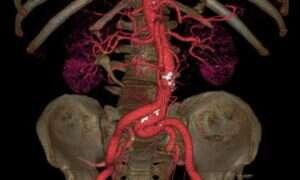 Ultraszybka tomografia to rewolucja w medycynie