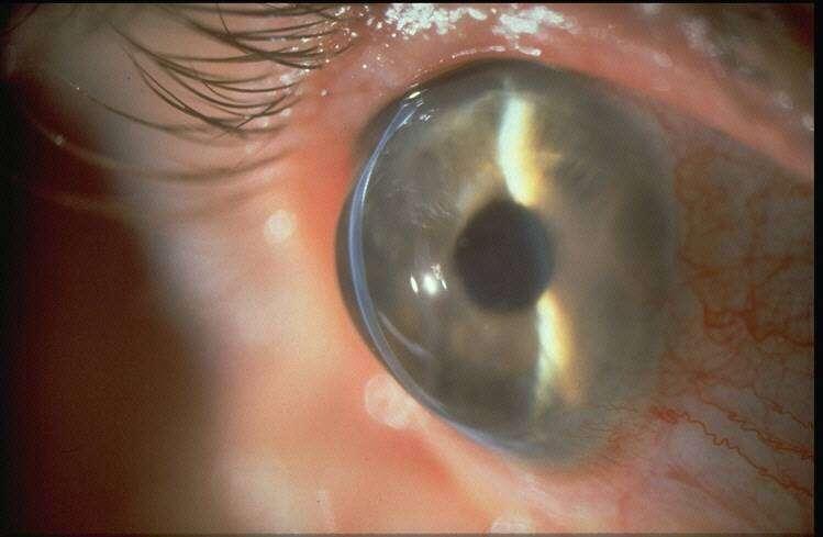 Pellucid-marginal-corneal-degeneration