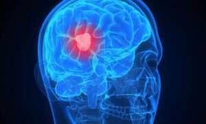 Pochodna Eboli pomoże w zwalczaniu guza mózgu