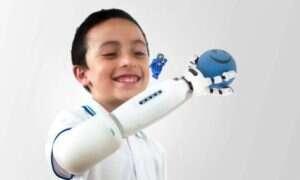 Oto zmyślna proteza, którą dzieci same mogą usprawnić dzięki klockom LEGO
