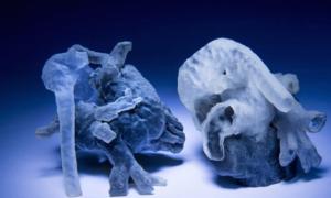 Druk 3D ułatwi pracę kardiochirurgów