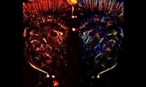 Nowa technika pozwoli na dokładniejsze niż kiedykolwiek wcześniej obrazowanie naczyń krwionośnych