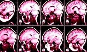 Twój typ pamięci zależy od budowy mózgu