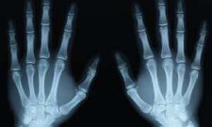 Czujniki z Kinecta mogą uczynić rentgen bezpieczniejszym