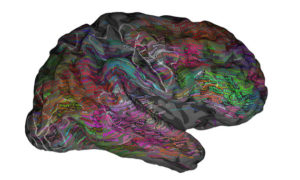 Sposób w jaki ludzki mózg rozumie język okazał się bardziej skomplikowany