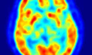 Zaczną się badania nad odwróceniem śmierci mózgu