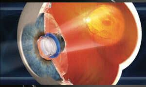 Wszczepiony do oka teleskop przywrócił mężczyźnie wzrok po 40 latach