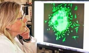 Dlaczego komórki nowotworowe szybciej dzielą się niż ich zdrowe odpowiedniki?
