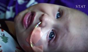 Czaszka wydrukowana w 3D uratowała życie chłopcu