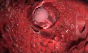 W jaki sposób tworzą się przerzuty nowotworowe?