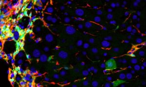 Wirus dostarczy białko, które zmieni złe komórki w dobre