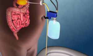 Urządzenie, które pomoże Ci schudnąć