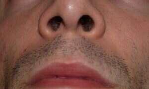 Antybiotyk ukryty w ludzkim nosie