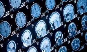 Glukoza nie jest najważniejsza dla guzów mózgu
