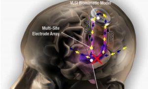 Implant poprawi naszą pamięć