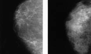 SI wykrywa nowotwory piersi z 99% dokładnością