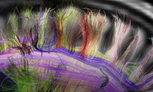 Ultradźwięki będące w stanie pobudzić mózg pacjenta po śpiączce