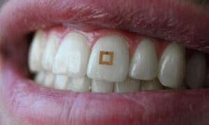 Smart ząb sprawdzi, czy pilnujesz swojej diety