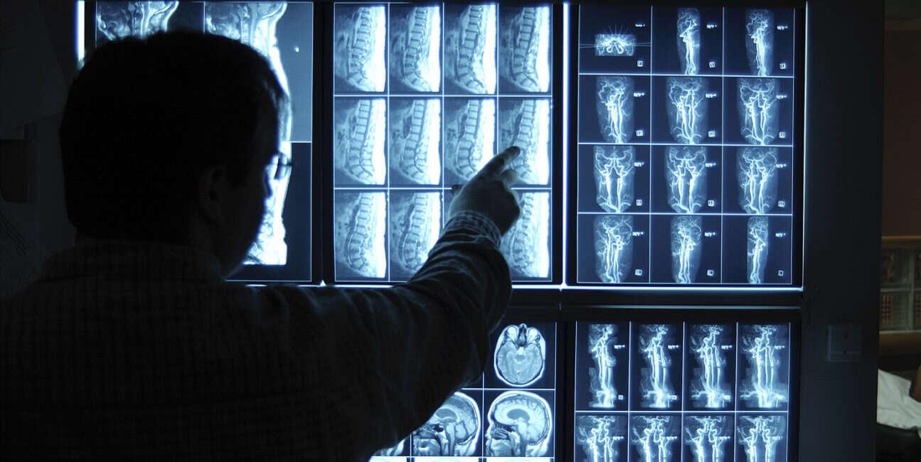 Intel, Philips, Xeon, segment medyczny, zdjęcia, sztuczna inteligencja, SI,