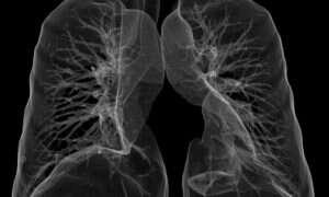 Lekarze wykorzystali sztuczną inteligencję do diagnozowania zapalenia płuc