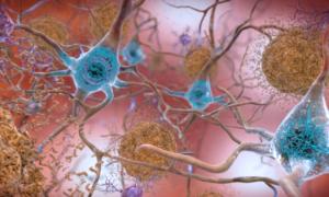Odkrycie w badaniach nad Alzheimerem