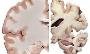 SI znajdzie wczesne symptomy Alzheimera