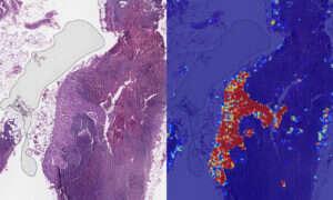 SI Google wykrywa nowotwory piersi skuteczniej niż ludzie