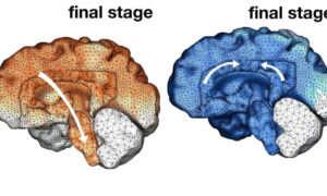 Tak wygląda mózg przejęty przez Alzheimera
