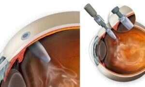 Implant oka pomoże w walce z zwyrodnieniem plamki żółtej