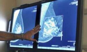 Mammografia 3D świetnie wykrywa nowotwory piersi