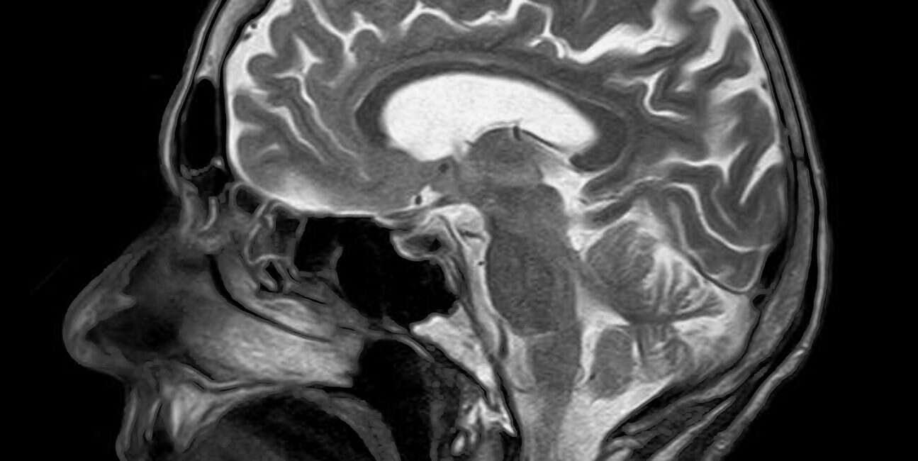 MRI, skan mózgu, przewidywanie demencji, demencja MRI, rezonans magnetyczny