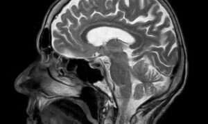 MRI jest w stanie przewidzieć demencję