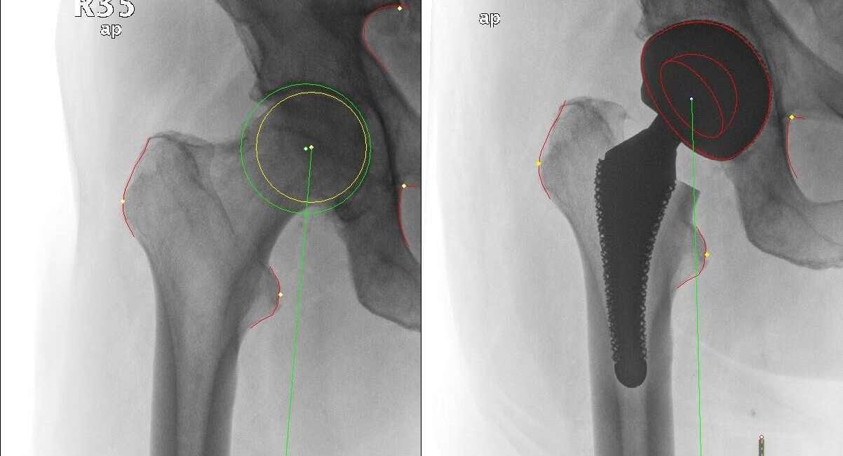 sztuczne biodro, operacja biodra, długość nóg, zmiana biodra, choroba biodra