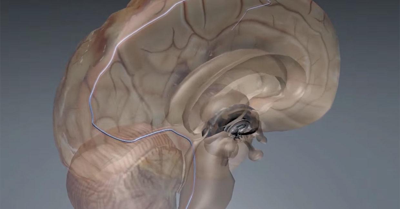 Implant, stymulacja mózgu, mały implant, głęboka stymulacja mózgu