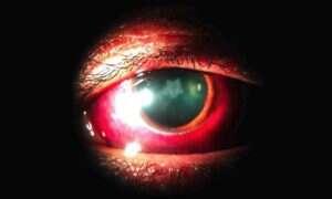 Uderzenie w twarz może spowodować zaćmę
