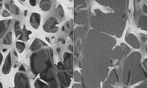 Atlas czynników genetycznych wpływających na osteoporozę