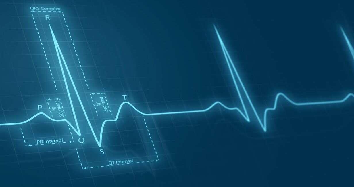 EKG, SI EKG, sztuczna inteligencja EKG, analiza EKG