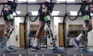 Proteza nogi ze wspomaganiem SI pomoże osobom po amputacji
