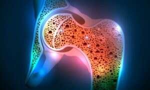 Nowe badania mogą doprowadzić do lepszego leczenia osteoporozy