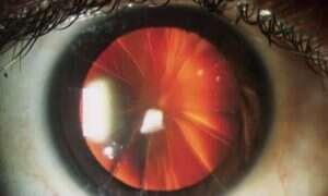 Oko pewnej kobiety wygląda jak pokrojona pizza